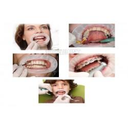 Rozwieracz jamy ustnej OptraGate Small
