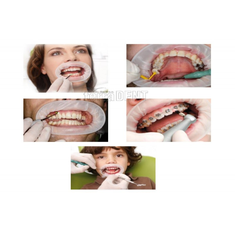 Oral mouth lips retractor OptraGate